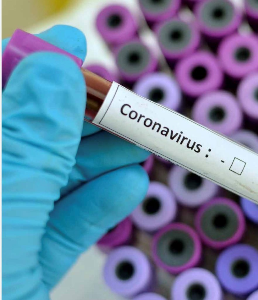 coronavirus business interruption
